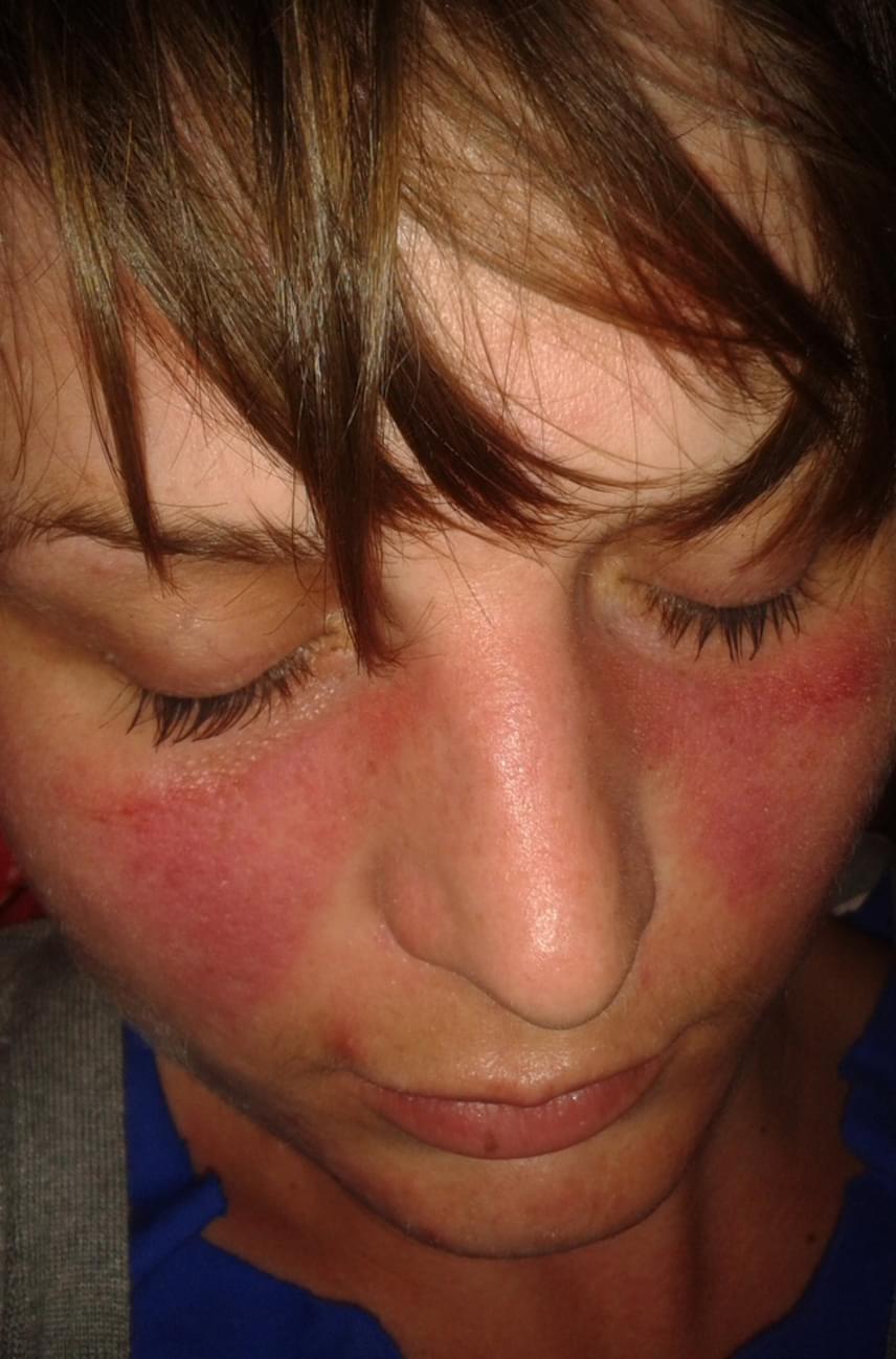 mi okozza a vörös foltok megjelenését az arcon Magyar kezels a pikkelysmr kezelsre