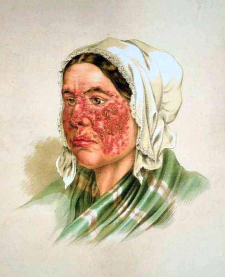 A képen az arcon megjelenő lupus látható egy régi orvosi szakkönyv ábrázolásán. A bőrön a lupus tünetei igen jellegzetesek: pirosodás jelentkezik az arc két oldalán szimmetrikusan, jellemzően pillangóformát kirajzolva. A kezdeti pirosodás azonban hegesedő kiütéssé is válhat, nem beszélve arról, hogy gyorsan terjedhet kezelés hiányában.