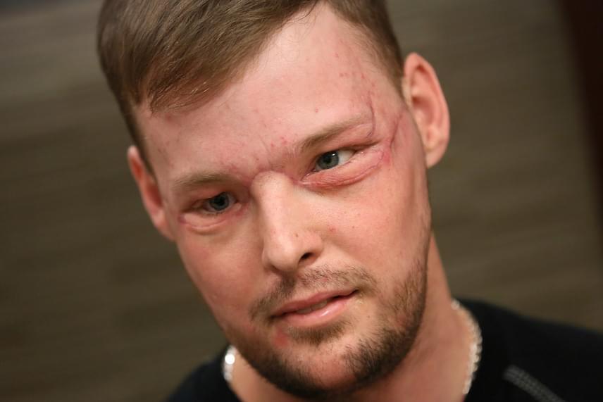 Az 50 órás operációra 2016 júniusában került sor, amely után Andy hónapokig lábadozott. Most, hogy a duzzanatok nagy része lelohadt, és a varratok helye is szépen összeforrt, így néz ki az új arccal.