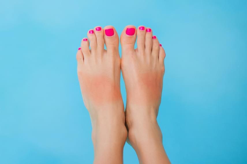 Piros részek a lábfejenA dühöt jelképezheti. Nem baj, ha mérges vagy. Akkor betegszel bele, ha a dühödet magadba fojtod. Ha a sarkadon pirosabb a bőr, az a terület a családi, társadalmi és munkával kapcsolatos részekre vonatkozik.
