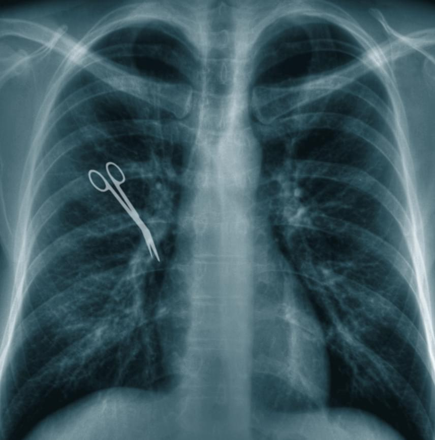 Magyarországon például bevett gyakorlat az eszközöket műtét előtt, illetve után is megszámolni, emellett jellemző a röntgenvizsgálattal történő utólagos ellenőrzés is.