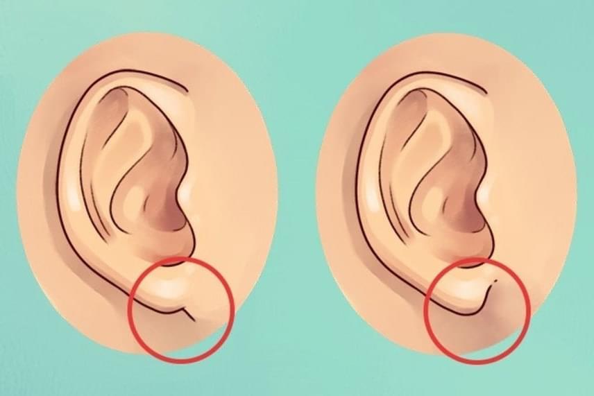 Ha fülcimpád a bal oldalira hasonlít, vagyis illeszkedőbb, te inkább extrovertált, nyitott személyiség vagy, ha pedig a jobb oldalira, tehát kevésbé illeszkedik, inkább zárkózott, tehát introvertált.