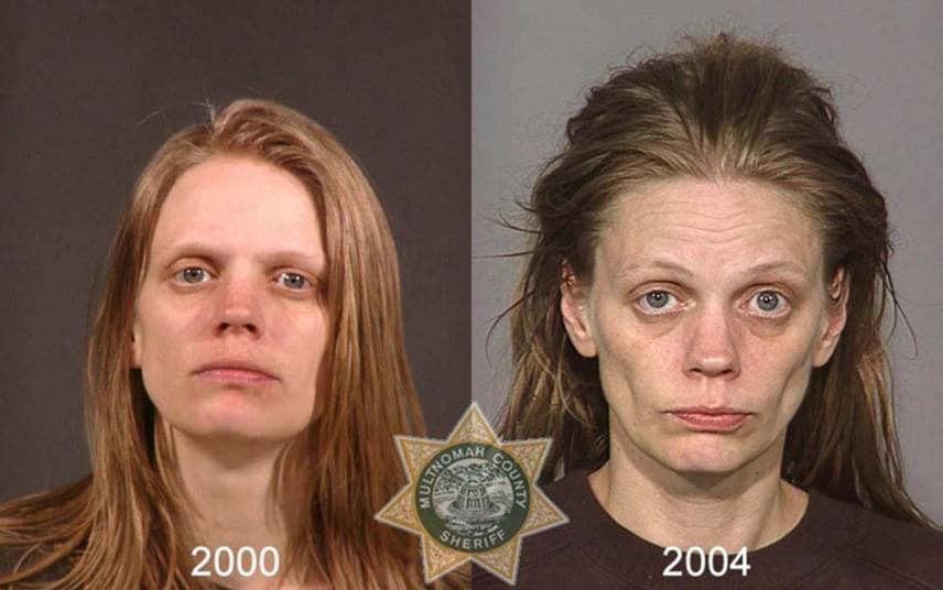 A metamfetamin használatának jelei nagyon gyorsan megmutatkoznak az arcon, a szer például szűkíti a vérereket, ami miatt a bőr vékonyabbá, az arc sápadtabbá és nyúzottabbá válik, emellett gyakran az íny is sorvadni kezd.