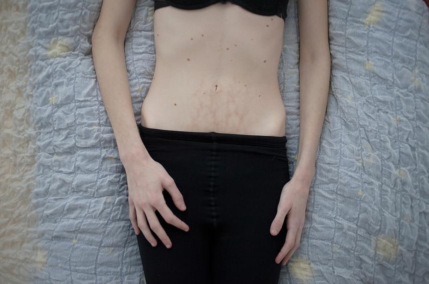 A képen szereplő lány anorexiával küzd, a hasán található égési sérüléseiről pedig azt gondolja, tökéletes szimbólumai állapotának. Utóbbi miatt állandóan fázik, ezért nem tud elaludni meleg vizes palack nélkül. Ez gyakran túl forró, ami ilyen sérüléseket okoz.