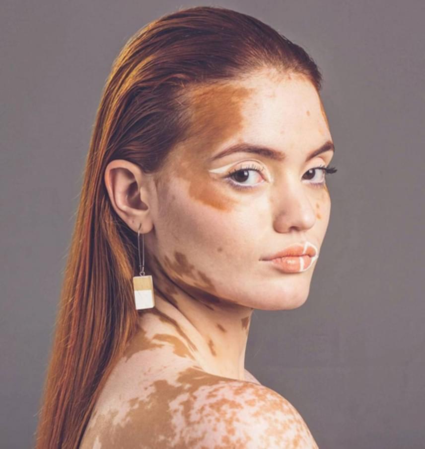 A vitiligo során a betegek bőrében lévő melanin elkezd felszívódni. A melanin az, ami meghatározza a bőr, a haj, illetve a szem színét. A vitiligós betegeknél a melanin termelése leáll, vagy az azt termelő sejtek meghalnak, így a betegség tüneteként pigmentvesztés alakul ki, ami egyre nagyobb fehér foltokat eredményez a testen. Főként a fénynek leginkább kitett részeken.