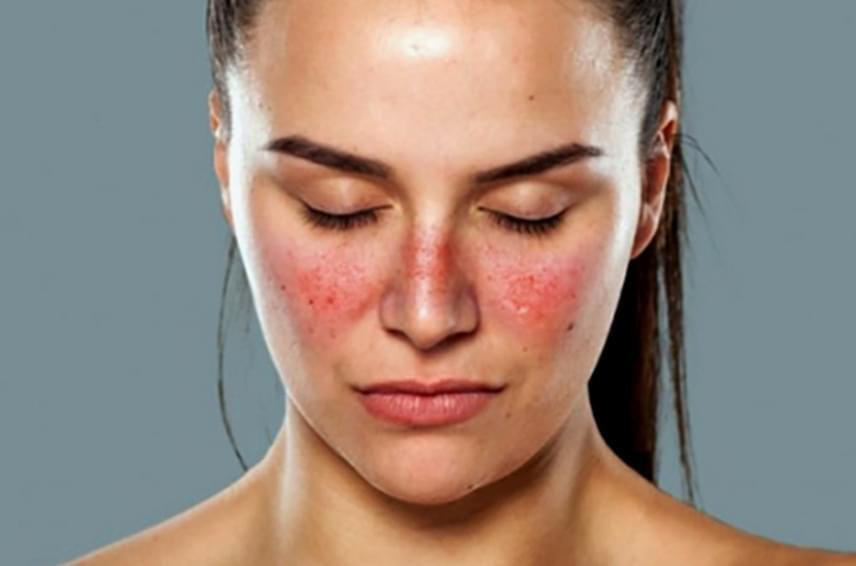 A lupus vagy bőrfarkas szintén autoimmun betegség, illetve krónikus gyulladás, mely jellemzően 18-45 év közötti, fogamzóképes nőket érint. Előfordulhat, hogy csak a bőrön ad tüneteket, de a szervezet egészére is kihathat, igen sokrétű tüneteket okozva. A bőrön nagyon jellegzetesek a tünetei, pirosodást okoz az arc két oldalán, szimmetrikusan, pillangó alakban.