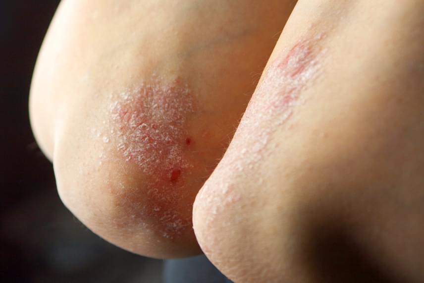 A pikkelysömört vagy psoriasist szintén autoimmun eredetű problémának tartják, mely bár tünetileg jól kezelhető, jelenleg még nem gyógyítható. A betegség lényege, hogy a hámsejtek gyorsabb osztódása következtében elszarusodó foltok, plakkok jelennek meg a bőrön, melyek összefüggő elváltozássá is fejlődhetnek.