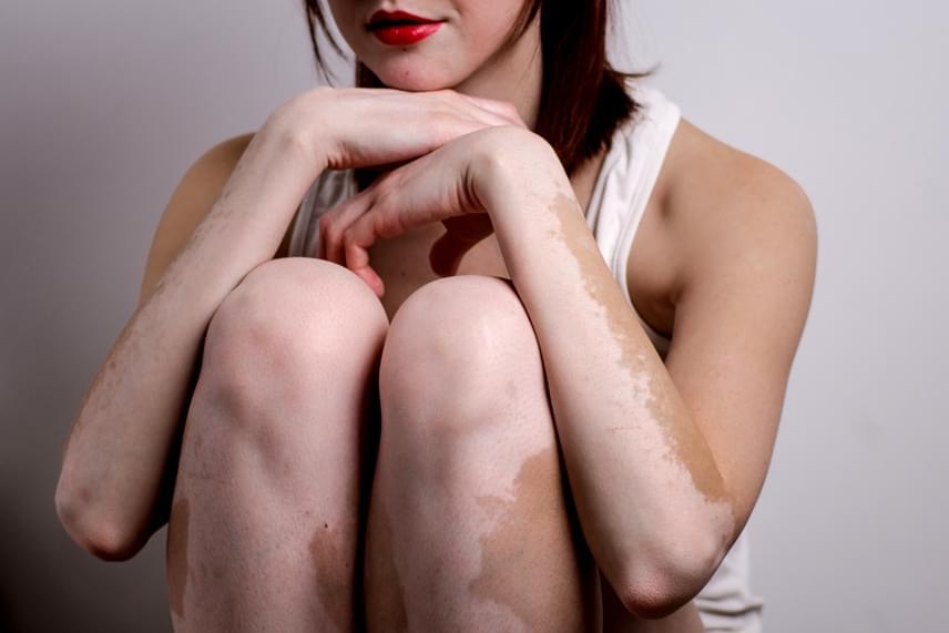 Ennek oka, hogy ez az autoimmun betegség jellemzően nem jár együtt egy adott társbetegséggel - bár megjelenhet Addison-kór, pajzsmirigybetegség és cukorbetegség mellett is -, ami miatt ártalmatlannak számít, ha nem vesszük figyelembe a bőr nappal szembeni fokozott kitettségét, valamint a fehér foltokkal járó lelki terheket.