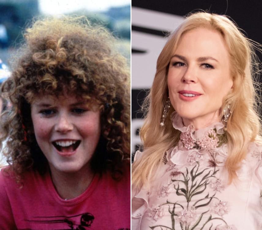 A bal oldali képen a 16 éves Nicole Kidman látható a BMX banditák című filmben. A jobb oldali felvétel a közelmúltban készült a 49 éves színésznőről, a különbség pedig nem is lehetne látványosabb.