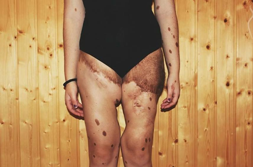 Alba csecsemőkorában több műtéten is átesett, hogy javítsanak a bőre minőségén, emiatt máig látszanak sebhelyek a testén.