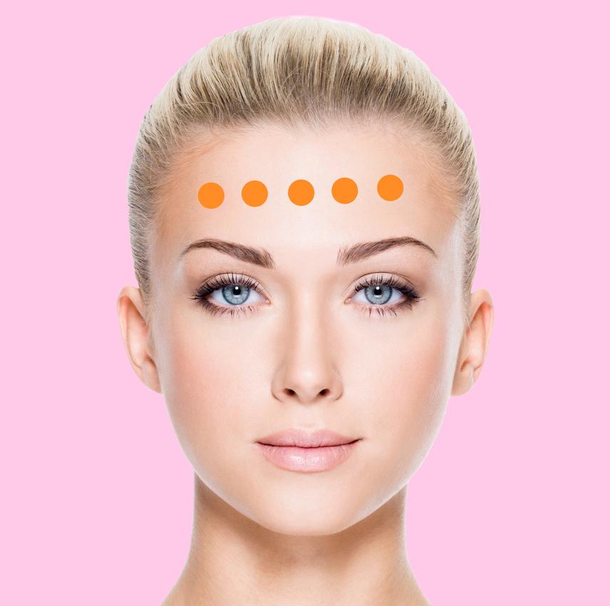 A homlok felső része az emésztés és húgyhólyag állapotát tükrözi, míg az alsó felén megjelenő pattanások a szív- és érrendszeri problémákat is megmutatják.