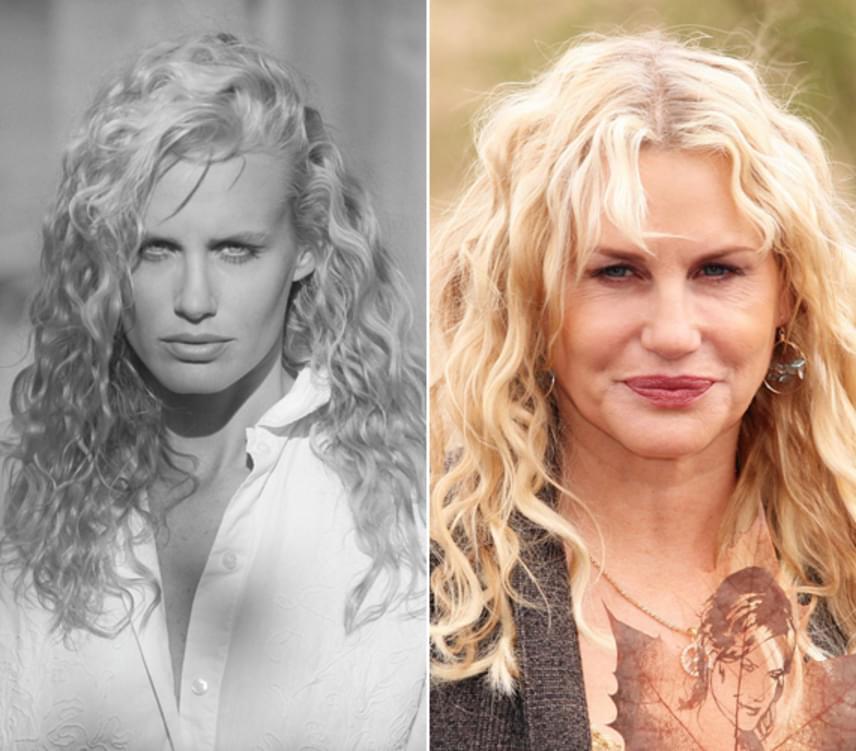 A szőke bombázó más hollywoodi kolléganőihez hasonlóan túlzásba vitte a plasztikáztatást, a sok botoxtól egészen megfagyott az arca.