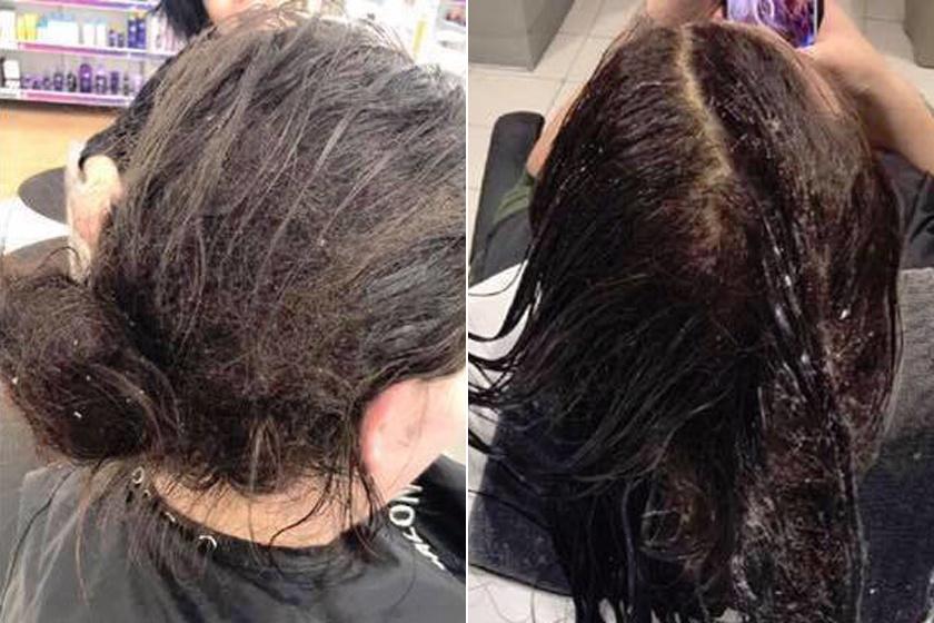 6 honapja nem mosott hajat FB