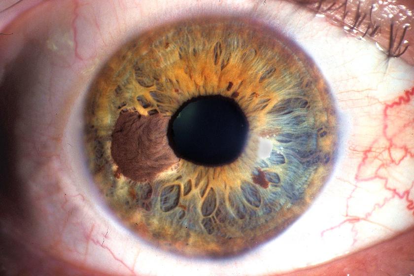 A szivárványhártya-anyajegy - naevus - megjelenhet ilyen formában is. Látásromlást előrehaladott állapotban eredményez. A szemfehérje barnás elszíneződése is előfordul, bár ritka tünetként.