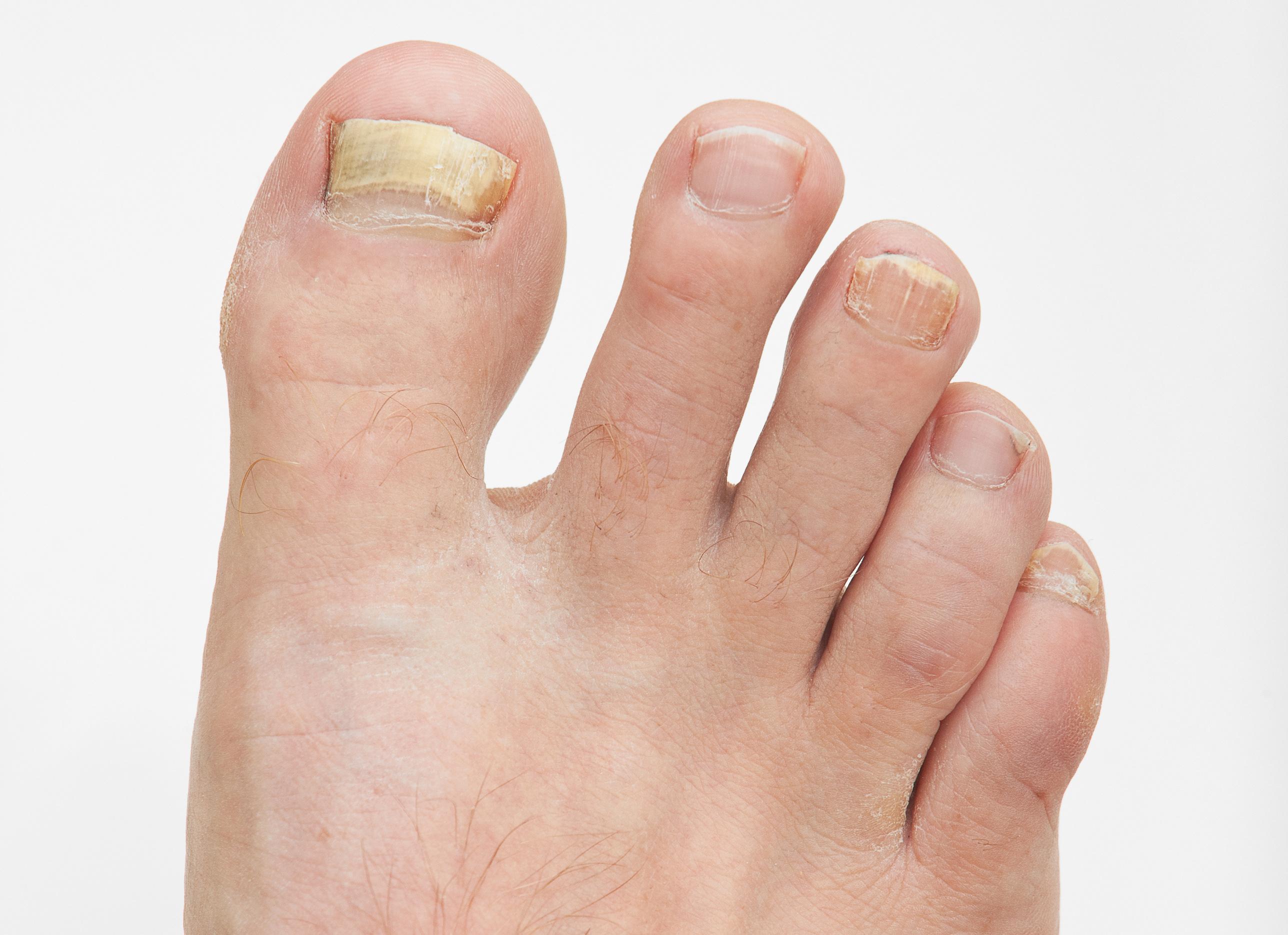 bőrhámlás a lábujjak között kezelés