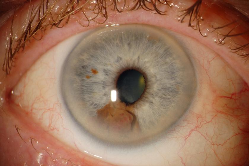 a látás helyreállítása episzklerális kitöltés után