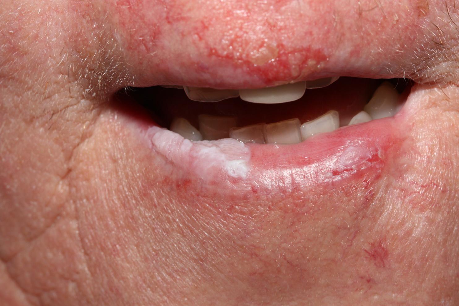 pelyhes vörös foltok a száj közelében)