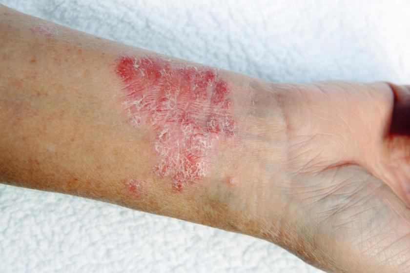 A Paget-kór olyan elváltozás a bőrön, amely egy rákmegelőző stádiumot jelent. A bőr hámrétegén alakul ki, ekcémaszerű kipirosodással és bőrirritációval jelentkezik, amely viszket, és később fehéres réteg keletkezik rajta.