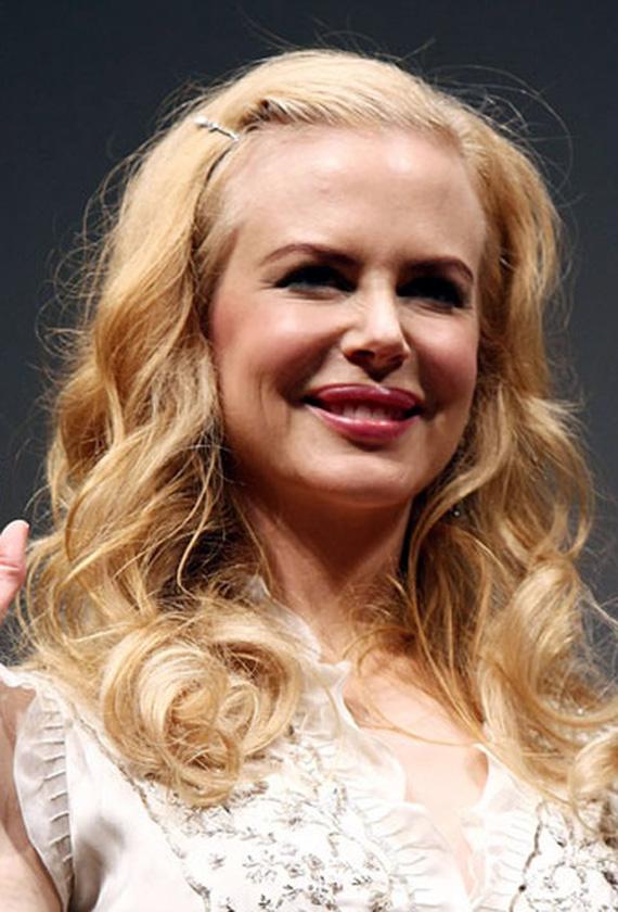 Nicole Kidmannek nemrég még borzalmasan el volt torzulva és fel volt puffadva az arca a sok botoxtól. Tényleg alig lehetett felismerni.