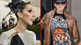 Céline Dionon már látszik, hogy túl sokat volt Las Vegasban