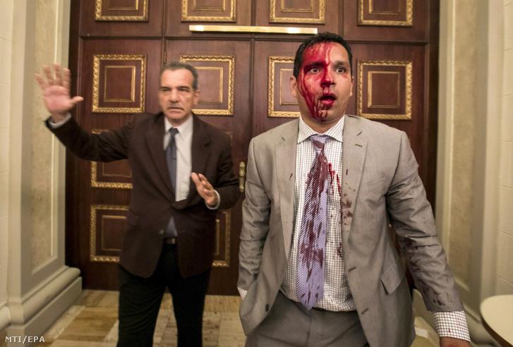 A kormánypárti tüntetők által megtámadott Luis Stefanelli (b) és Jose Regnault ellenzéki politikusok a venezuelai parlament folyosóján Caracasban 2017. július 5-én.