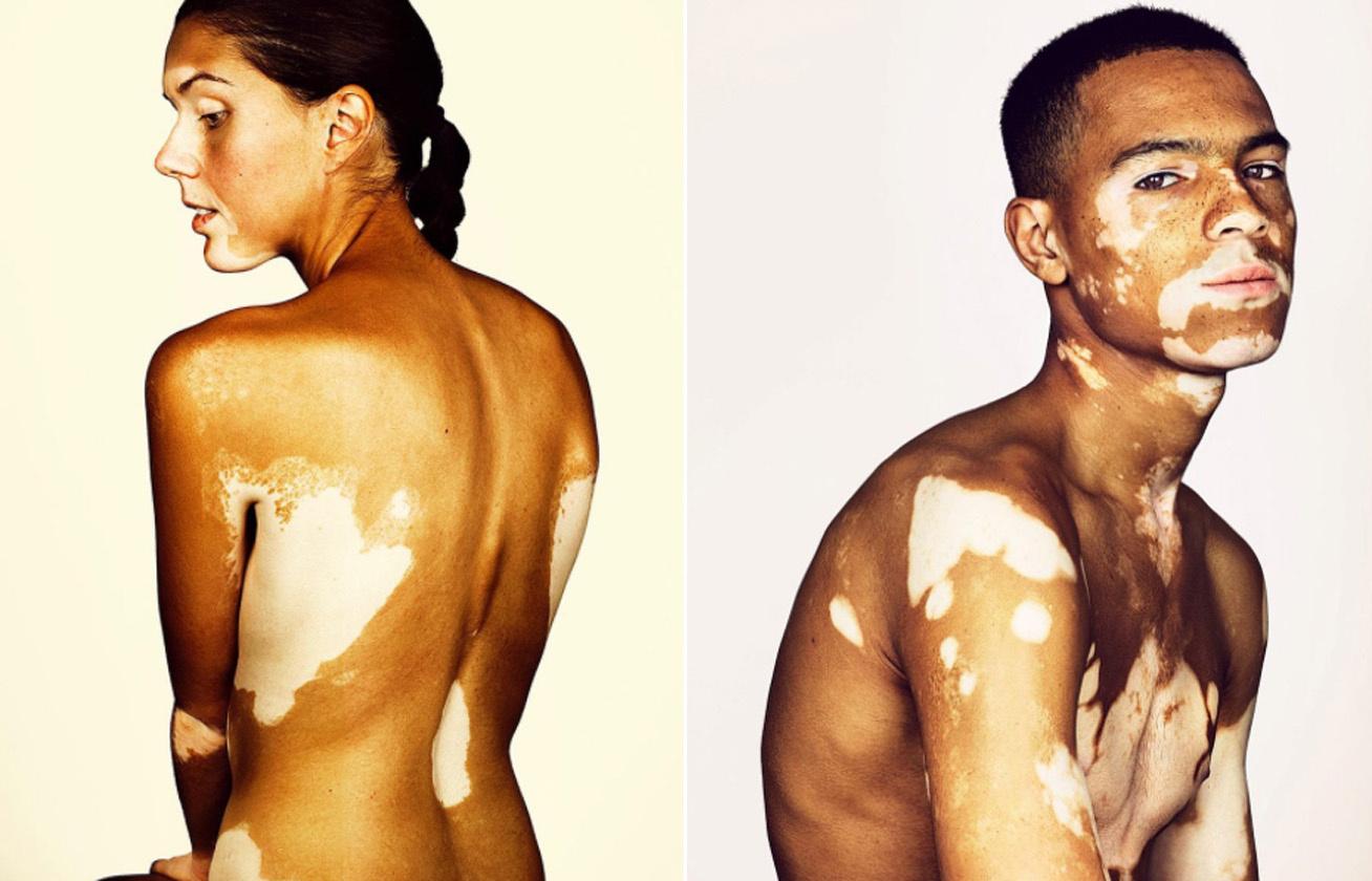 vitiligo kep cover