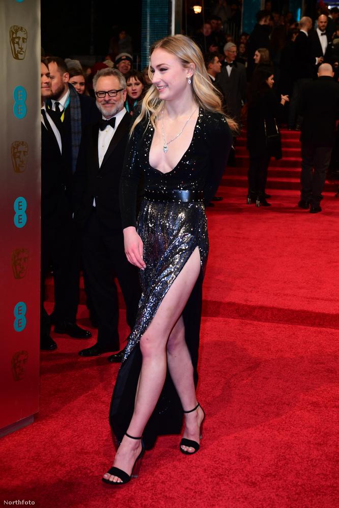 Arra emlékszünk még, amikor az idei BAFTA-gálán majdnem kivillant a melle a színésznőnek? Az igaz, hogy kétségtelenül szexin festett ezüstös szerkójában, ám az váratlan kihívások elé állította.