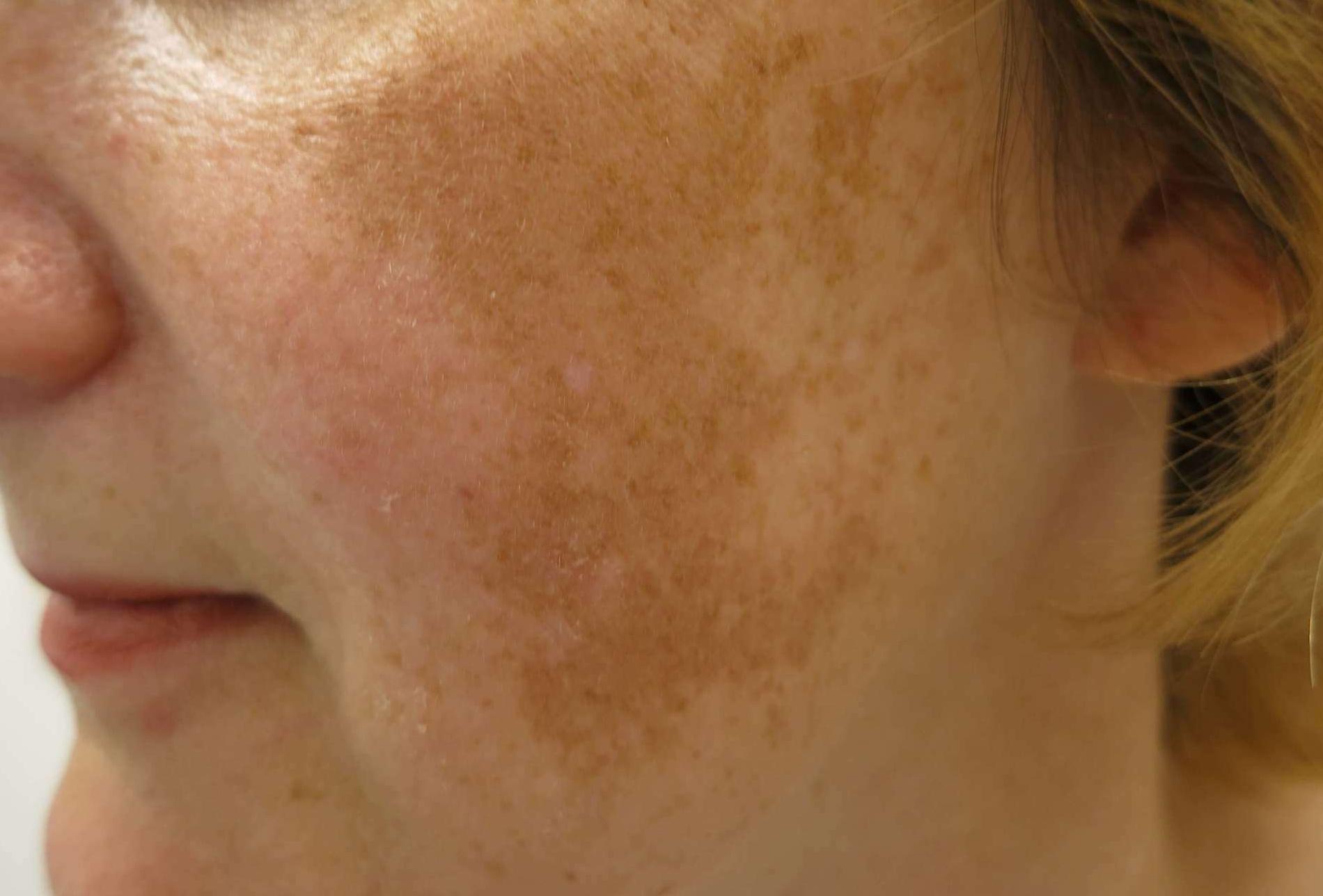 izgalommal vörös foltok jelennek meg a nyaki kezelésen tartós vörös folt a bőrön