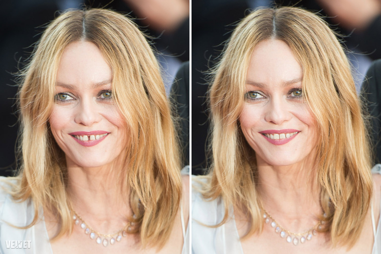 A Johnny Depp korábbi feleségeként is ismert színésznőt, Vanessa Paradis-t, megismerné egyáltalán anélkül a kis hézag nélkül a fogai között?