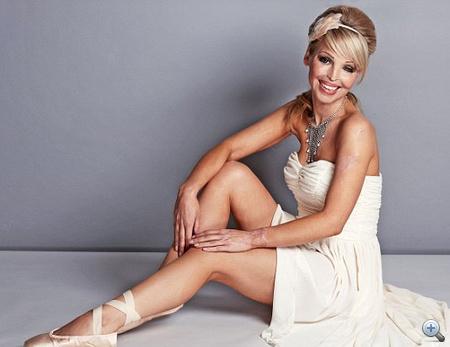 Katie Piper 2010-ben ismét modellkedhet, kattintson a fotókért!