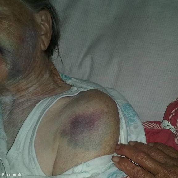 Az idős nő testét borító lila foltok