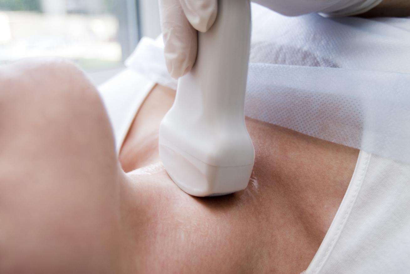 nyaki-ultrahang