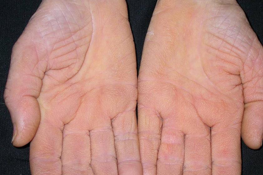 A megvastagodott bőr, ami erősen láthatóvá teszi a ráncokat vagy a tenyéren található barázdákat, leginkább tüdőrákot jelezhet. Ha viszont a test más tájain is jelentkezik, gyomordaganatra utal.