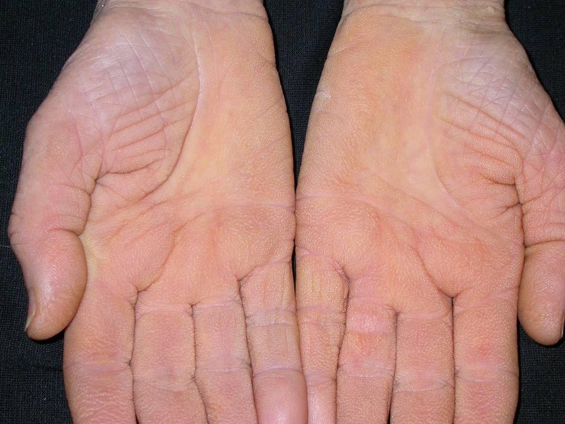 a testen egy vörös folt folyamatosan viszket egészségügyi kezelések a pikkelysömörhöz