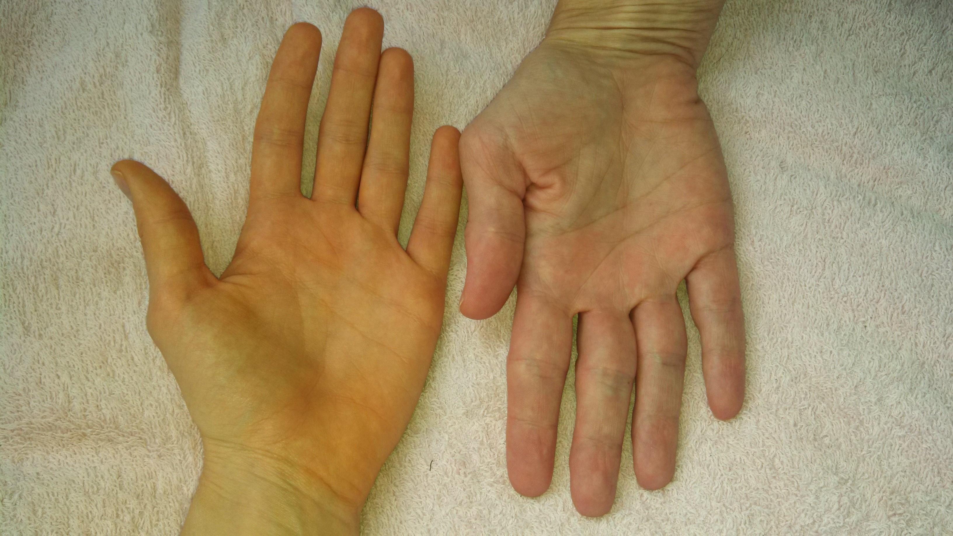 piros folt a kezén mit jelent)