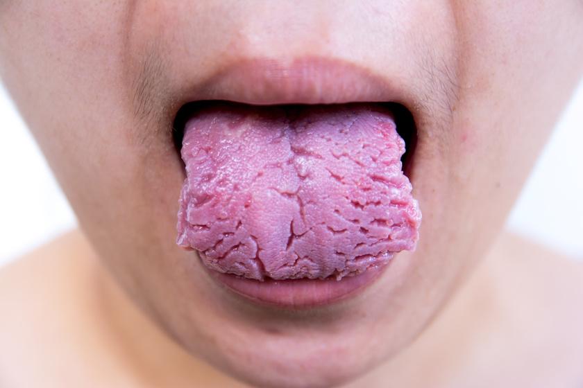 A pikkelysömör a száját és a nyelvét is érintheti