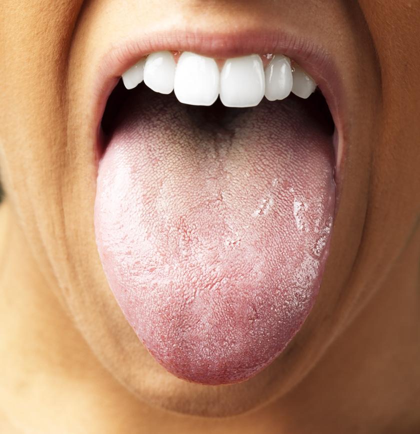 fogyás fehér nyelv milyen adag topiramát okoz súlycsökkenést