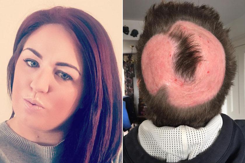 Így nézett ki a festés előtt és után. A plasztikai sebész szerint nem valószínű, hogy a festéktől kopasszá vált foltokon valaha is visszanő majd a haja.