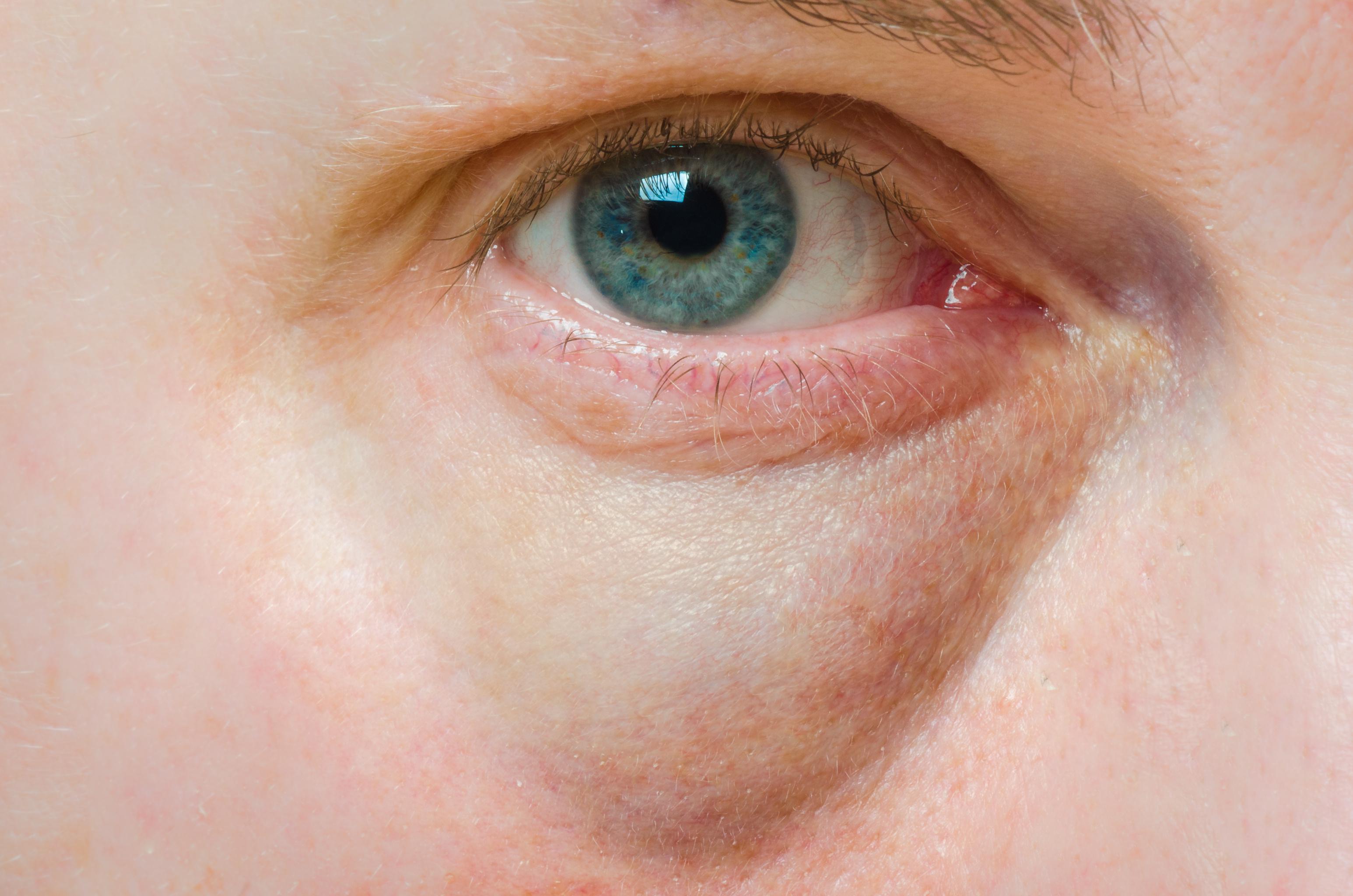 vörös folt a szem alatt, hogyan lehet gyorsan eltávolítani