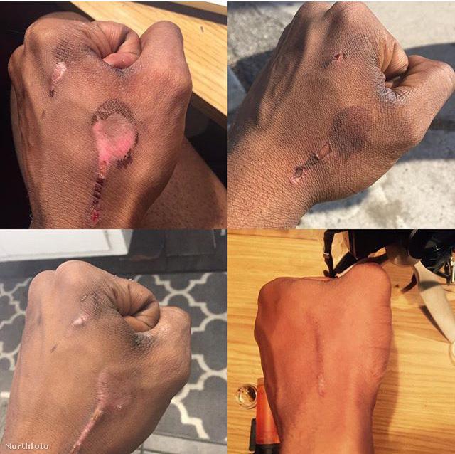 Ez a kép azt mutatja, White kezén milyen hatása volt a természetes anyagokkal történő bőrfehérítésnek