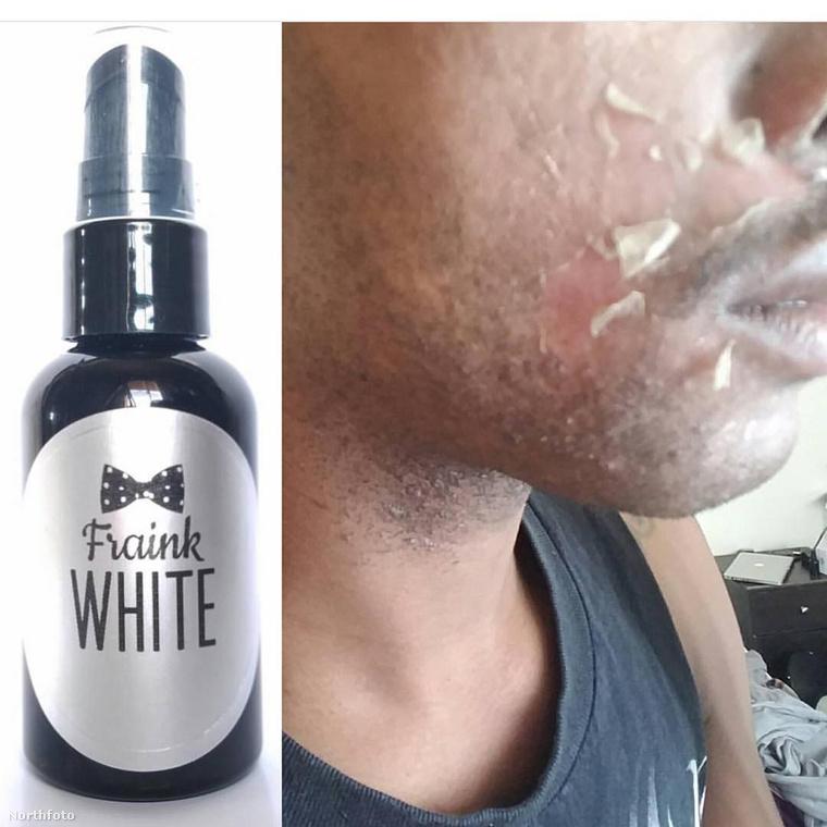 A fotó szerint a terméket így kell felvinni az arcra, hagyni kell hatni, aztán eltávolítható a fehérítőréteg.