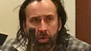 A borzasztó szakadt Nicolas Cage csúnyán beégett egy étteremben