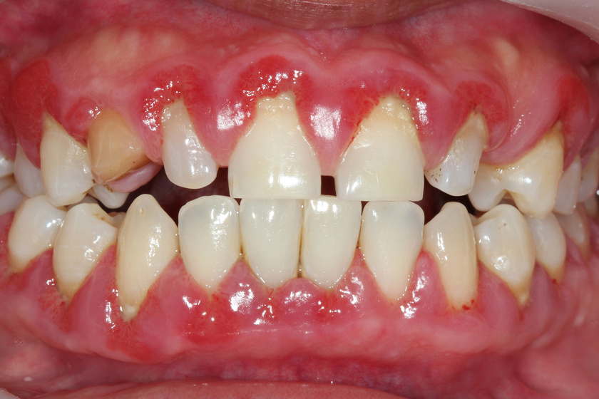 Jól látszik a képen a fogkövesedés, és az is, milyen csúnya ínygyulladást tud okozni.