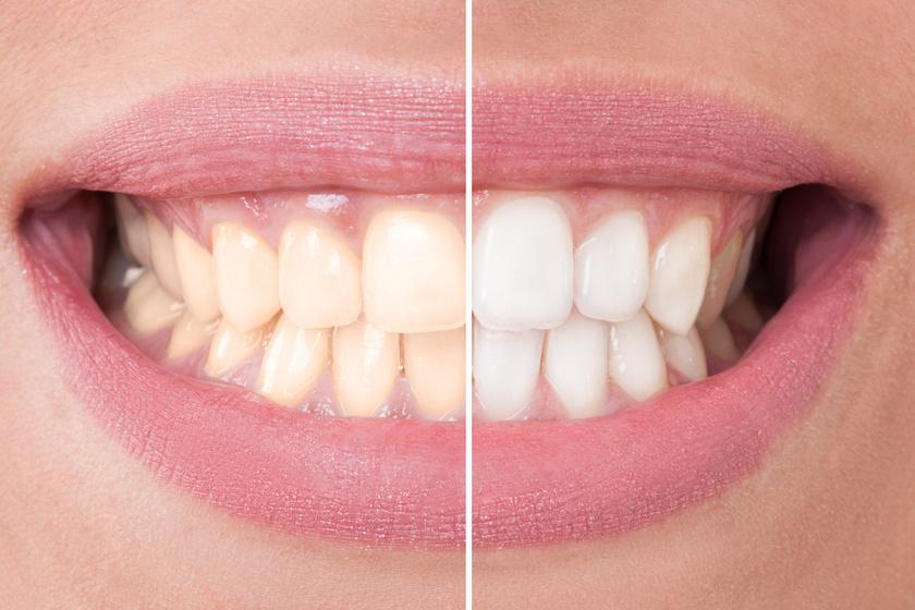 Több árnyalattal fehérebbek lesznek a fogak a házi pakolástól - Leszedi a lerakódásokat, és gyorsan hat