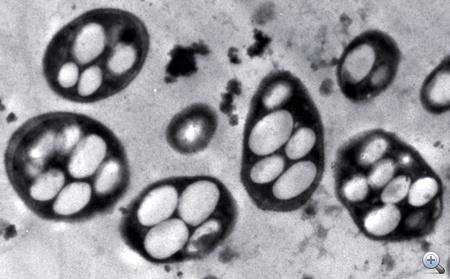 A baktériumok belső felépítése elektronmikroszkópos felvételen.