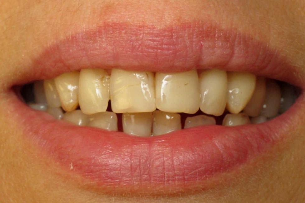 A dohányosok fogainak egészsége és elszíneződései   Oral-B