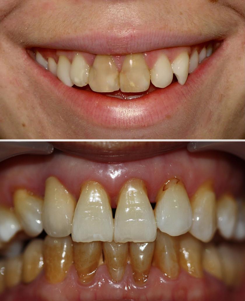 A dohányzás a fogak elszíneződésének egyik leggyakoribb oka. A sárgától a barna és egészen sötét színekig mozog az egyenetlen foltok árnyalatának skálája.