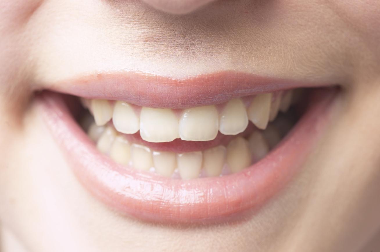 fogak-szaj