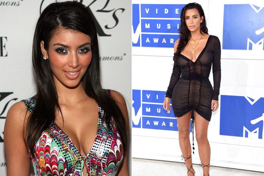 Kim Kardashiant Jafarnak csúfolták régen, az Aladdin főgonosza után, mostanra pedig minden férfi róla álmodozik. A melleit, a fenekét, az orrát és a hasát plasztikáztatta - utóbbit a szülés után -, de botoxoltatott, és az ajkait is feltöltette.
