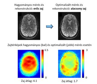 Az új módszerrel a zaj átlagosan kevesebb mint felére csökken az MRI-méréseknél.